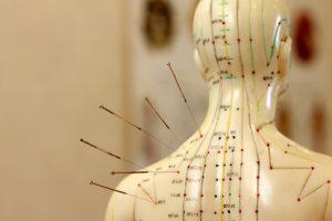 Akupunktur_Massage_Gais_Evelyn_Todt_Akupunktur2